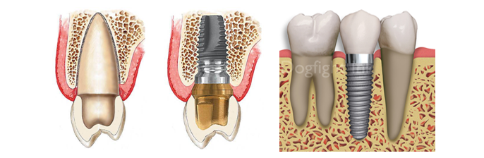 Dental Implants - 1