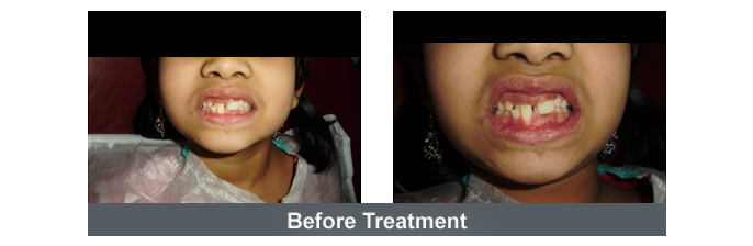 Orthodontics Image - 2