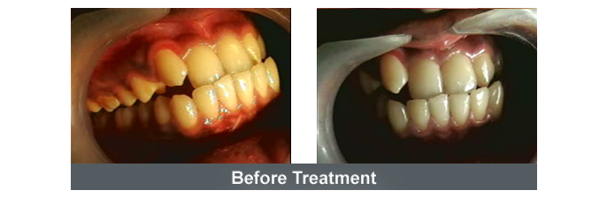 Orthodontics Image - 5