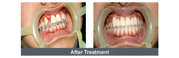 Orthodontics Image - 6