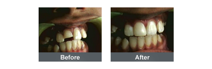 Tooth Color Filling - 2
