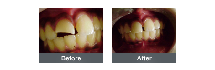 Tooth Color Filling - 3