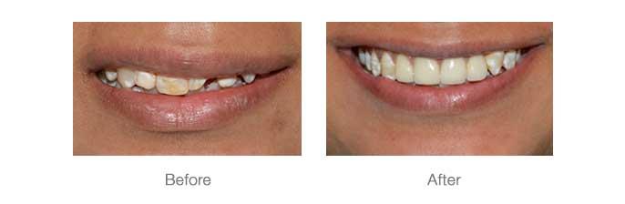Smile Design - 5