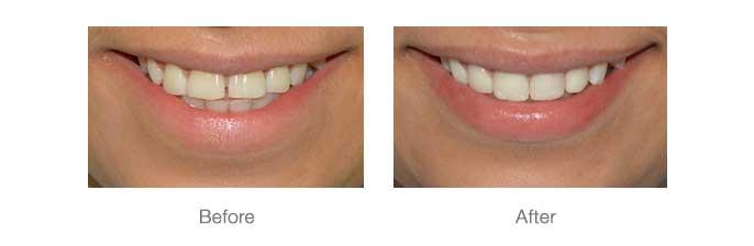Smile Design - 3