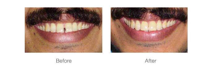 Smile Design - 8