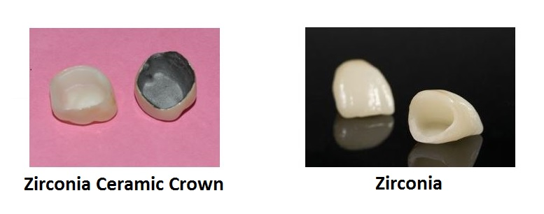zirconia-ceramic-crown